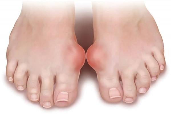Tham khảo kiến thức: Bệnh Gout